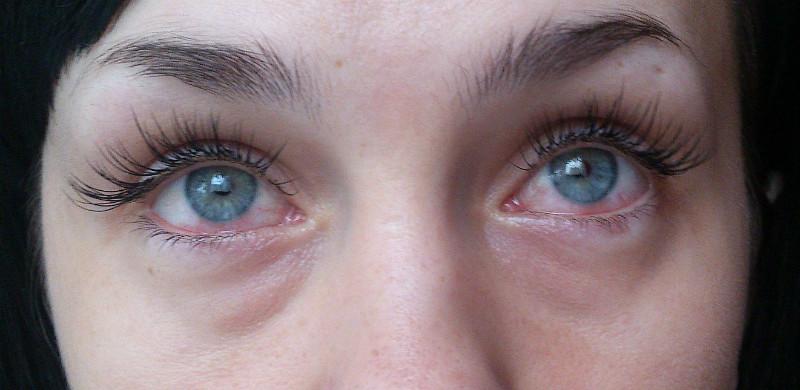 Аллергия на клей для ресниц